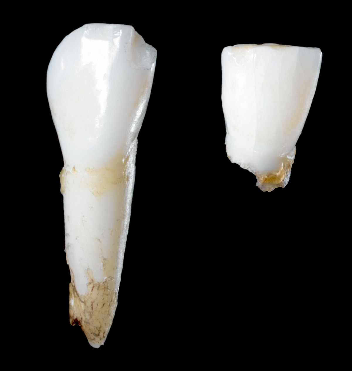CABINET / Leftovers / Where Do Teeth Go?